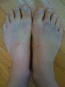 bruised-feet